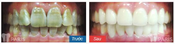 Đầy đủ các cách giảm ê buốt răng sau khi tẩy trắng triệt để 5