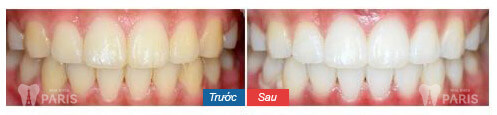 Đầy đủ các cách giảm ê buốt răng sau khi tẩy trắng triệt để 4