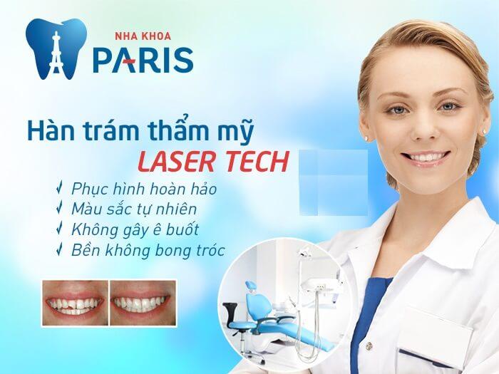 Chữa ê buốt răng sau khi trám triệt để tại Nha khoa Paris 3