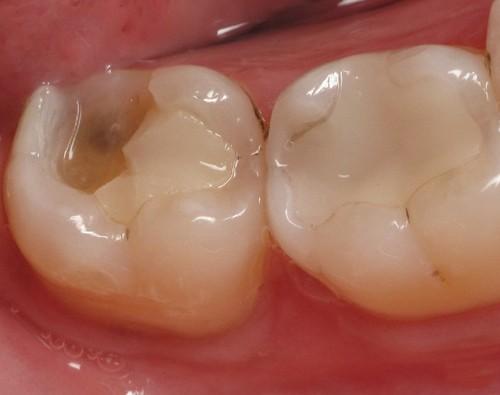 Top 2 lưu ý khi bị sâu răng nặng phải làm sao để khắc phục tại nhà 1