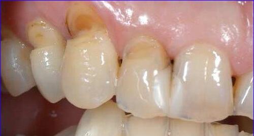 Tất tần tật cách chữa buốt răng khi uống nước lạnh triệt để 2
