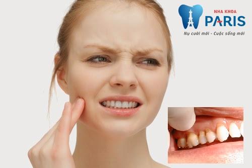 Nguyên nhân và các cách làm giảm ê buốt răng CỰC HIỆU NGHIỆM 1