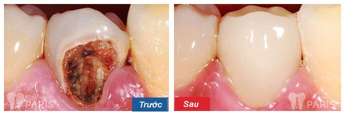 Top 3 phương pháp phục hình răng bị sâu nặng TỐT nhất 3