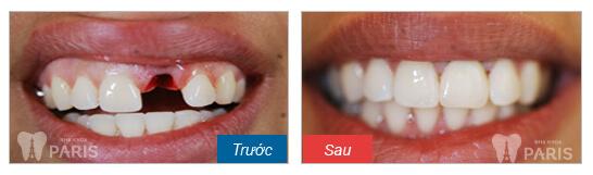 Top 3 phương pháp phục hình răng bị sâu nặng TỐT nhất 4