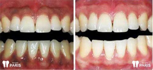 Nướu răng bị thâm đen là biểu hiện của bệnh gì? 2