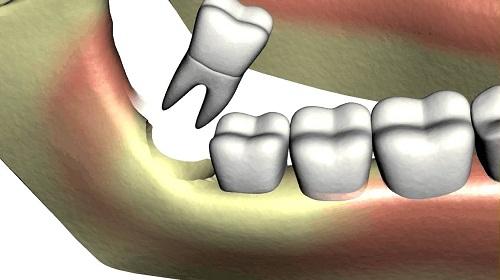 Răng khôn bị sâu nặng nên nhổ bỏ hay có cách khác? 1