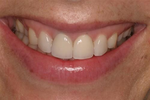 Nướu răng bị thâm đen là biểu hiện của bệnh gì? 1