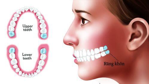 Tuổi mọc răng khôn là khi nào? 3 Lưu ý về các biến chứng NGUY HIỂM 1