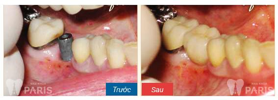 Viêm chân răng uống thuốc gì nhanh khỏi nhất?【Giải Đáp】3