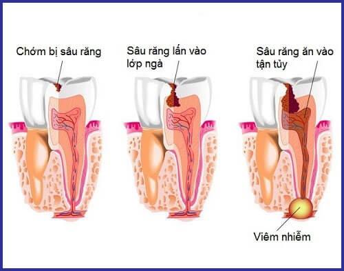 Những cách trị sâu răng tại nhà CỰC NHANH chỉ sau 5 phút 2