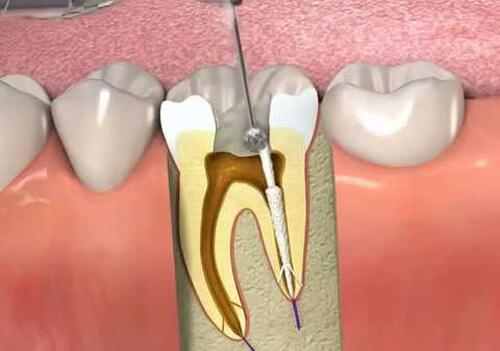 Răng sâu vào tủy có nên nhổ hay không? 1