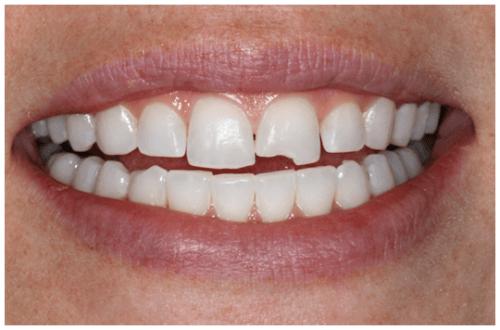 Răng bị sứt mẻ phải làm sao?-Cách khắc phục nhanh và hiệu quả nhất 1