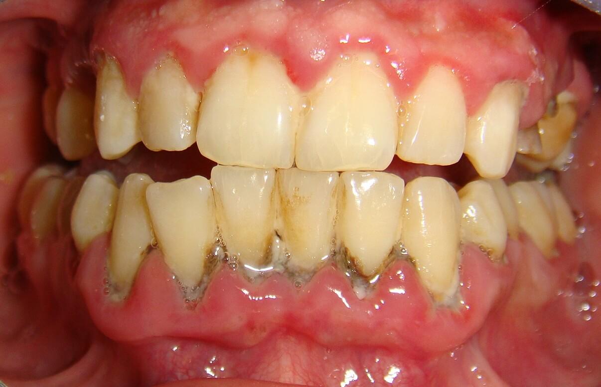 Bị viêm nướu răng phải làm sao để chữa trị hiệu quả và triệt để nhất? 3