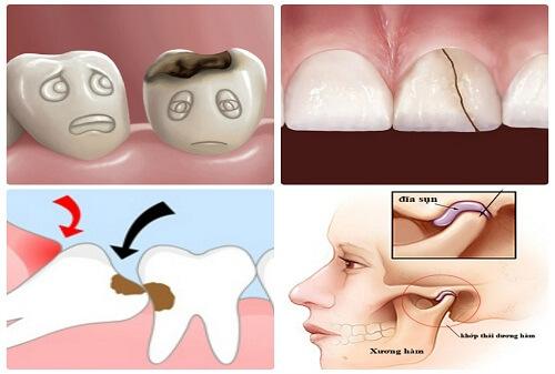 Chia sẻ 7 mẹo chữa nhức răng Tại Nhà nhanh nhất HIỆU QUẢ 100% 1