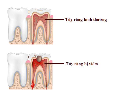 diệt tủy răng