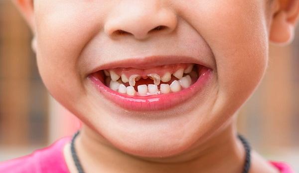 Trẻ em bị sâu răng sữa nên điều trị và chăm sóc răng như thế nào? 1