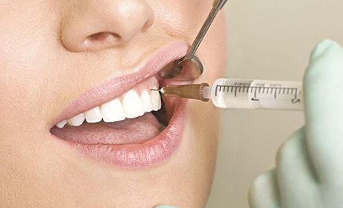 Kết quả hình ảnh cho chữa tủy răng