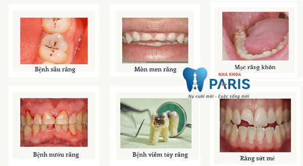 TOP 8 Cách làm giảm đau răng tại nhà HIỆU QUẢ 100% sau 5 phút 1