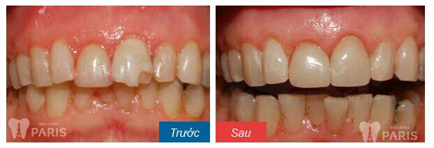 Răng bị sứt mẻ phải làm sao?-Cách khắc phục nhanh và hiệu quả nhất 2