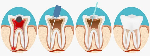 Tìm hiểu 4 triệu chứng viêm tủy răng Có hồi phục & Không hồi phục 4