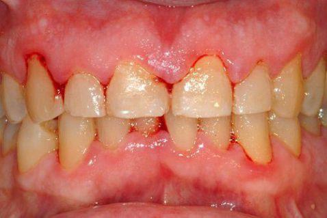 Nên làm gì khi bị sưng nướu răng và chảy máu chân răng? 1