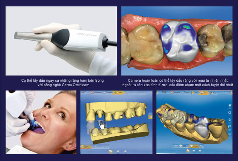 Nhức răng sau khi trám răng nên làm gì? Trám răng xong kiêng gì? 1