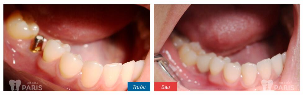 ❝NEW❞ Nhổ răng khôn giá bao nhiêu tiền? MỚI CẬP NHẬT T8/2017 3