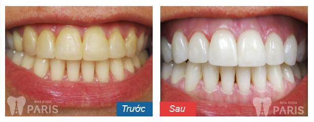 Ê buốt răng sau khi tẩy trắng 3