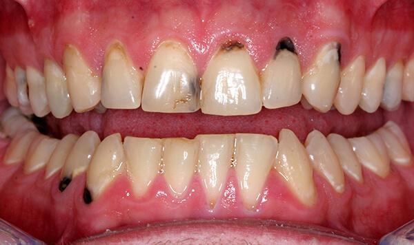 Tim hiểu nguyên nhân nào gây đau nhức răng cửa?【Giải Đáp】2