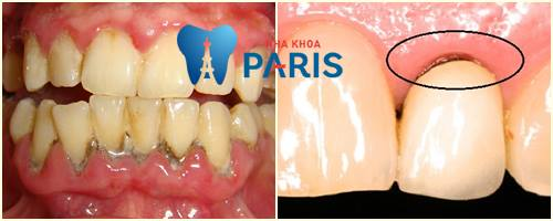 Nướu răng bị thâm đen làm thế nào để chữa trị AN TOÀN & HIỆU QUẢ 2