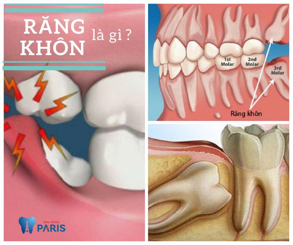 Răng khôn là gì? Có nên nhổ răng khôn hay không? 1