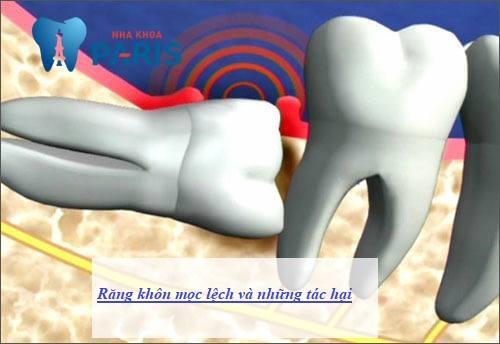 Răng khôn mọc lệch: Nguyên nhân & Cách khắc phục AN TOÀN nhất 2