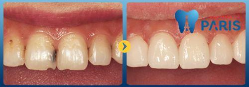 Con sâu răng có thật không 2