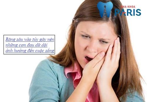 Cách điều trị răng sâu vào tuy AN TOÀN hiệu quả TẬN GỐC 2