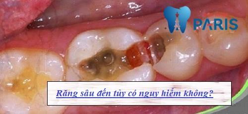 Cách điều trị răng sâu vào tuy AN TOÀN hiệu quả TẬN GỐC 1
