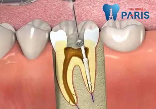 Cách điều trị răng sâu vào tuy AN TOÀN hiệu quả TẬN GỐC 3