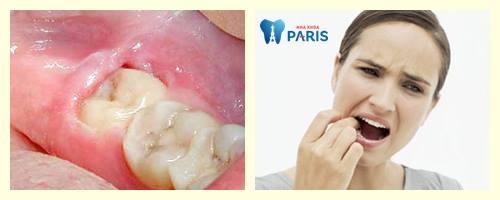 Sưng nướu răng trong cùng - Nguyên nhân & Cách điều trị Dứt Điểm 2
