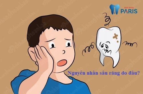Top 7 nguyên nhân sâu răng và cách phòng tránh sâu răng tại nhà 1