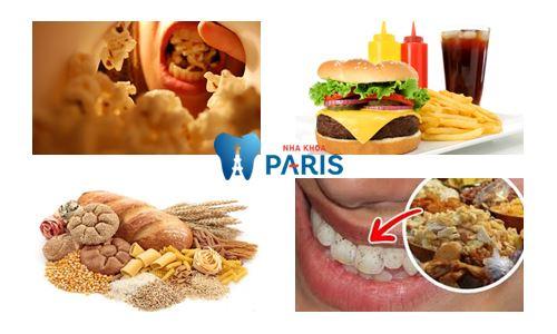 Top 7 nguyên nhân sâu răng và cách phòng tránh sâu răng tại nhà 3