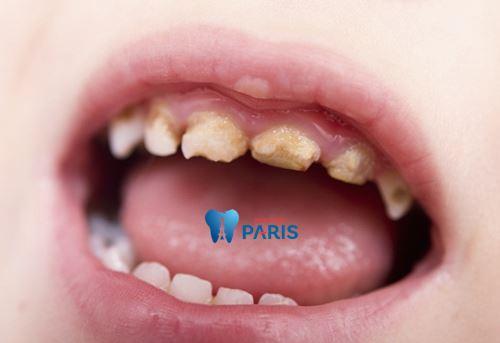 Top 7 nguyên nhân sâu răng và cách phòng tránh sâu răng tại nhà 5