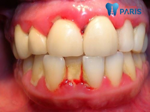 Top 7 nguyên nhân sâu răng và cách phòng tránh sâu răng tại nhà 6