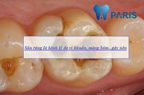 Cách bắt sâu răng bằng lá tía tô có HIỆU QUẢ & trị DỨT ĐIỂM không? 2