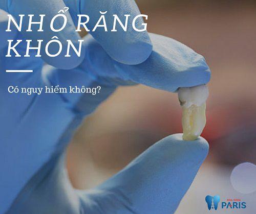 Nhổ răng khôn hàm trên có NGUY HIÊM không, có ĐAU hay không? 1