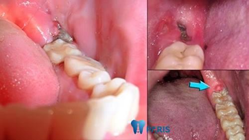 Một số điều bạn cần nắm rõ khi bị áp xe răng khôn 2