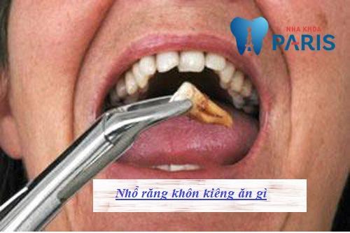 nhổ răng khôn kiêng ăn gì 1