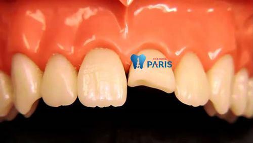 Đau răng cửa 1