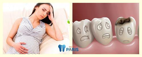 Sâu răng khi đang mang thai