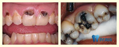 Sâu răng bị đen