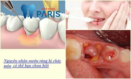 Nướu răng hay bị chảy máu - Nguyên nhân & Cách điều trị DỨT ĐIỂM 2