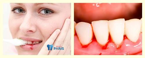 Đánh răng chảy máu: Nguyên nhân và cách điều trị hiệu quả 1